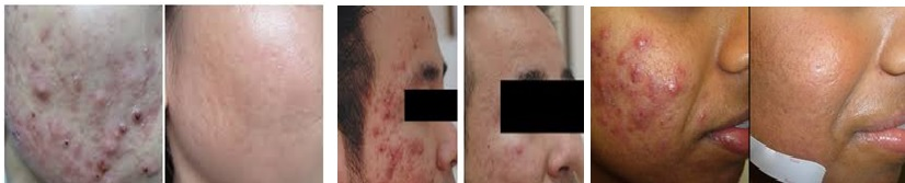 acne-treatment-aktif